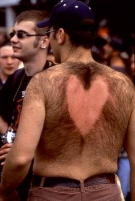 Funny Picture - A Hairy Valentine