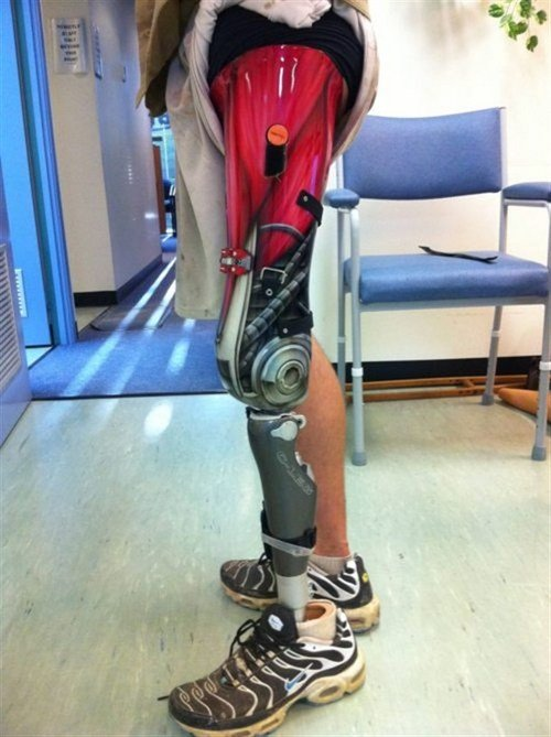 Funny Picture - Prosthetic Paint Job